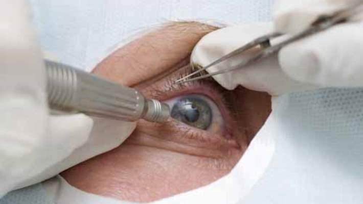 Kozmetik Göz Ameliyatı