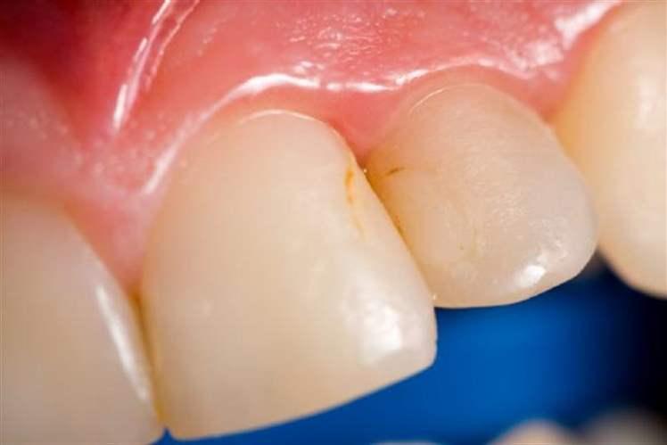 Diş Temizleme İşlemiyle Süt Beyazı Dişler