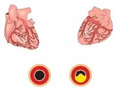 Kalp Hastalıkları ve Kronik Anjin İçin Geliştirilmiş Dış Kontrpulsasyon