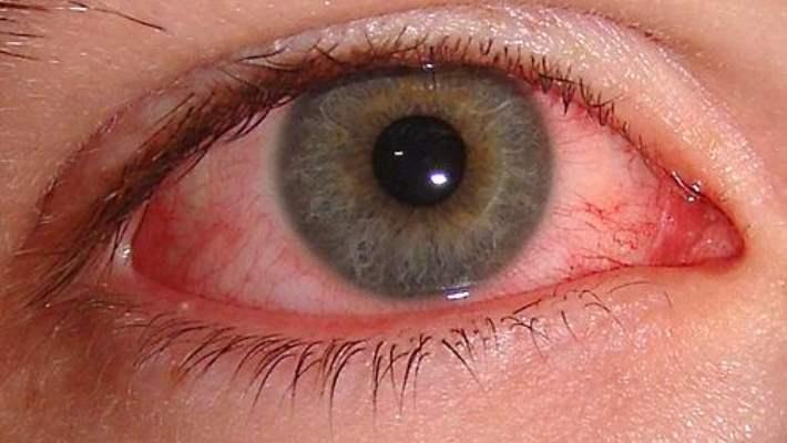 Göz Yangısı (Konjonktivit)
