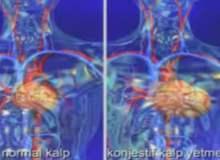 Kalp Hastalıkları ve Dilate Kardiyomiyopati