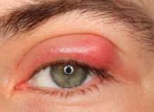 Mikrobik Göz Enfeksiyonları