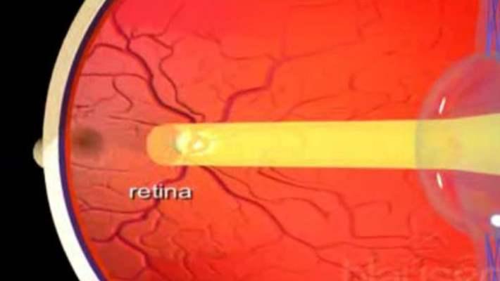 Retinoblastom (Retina Kanseri)