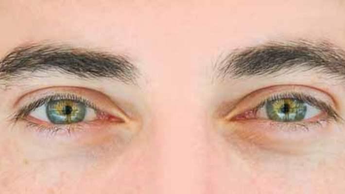 Retinanın Doğuştan Bozuklukları