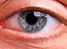 Retina Distrofileri