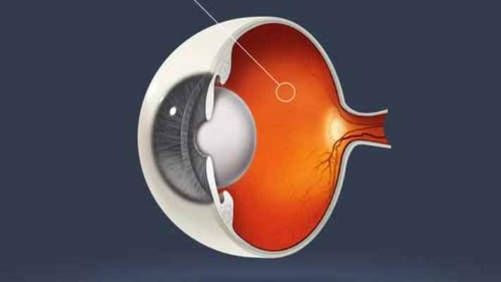 Retina Ayrılması