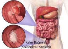 Kolorektal Kanser
