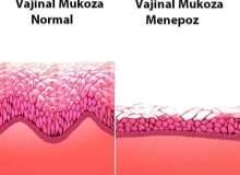 Bakteriyel Vajinozis