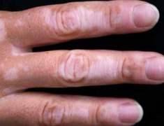 Akderi (Vitiligo)