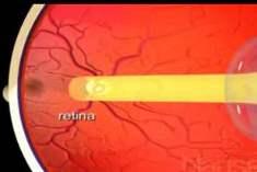 Retina Bozuklukları