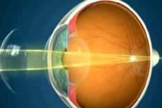 Refraktif Lens Değişimi Nedir?