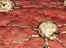 Yetişkinlerde Beyin Tümörleri