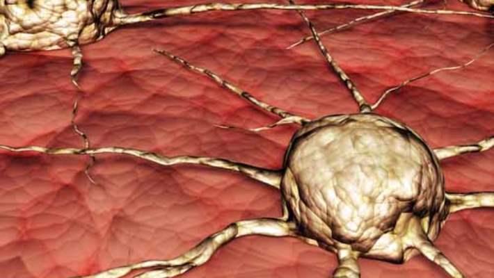 Glioblastoma Multiform