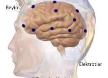 Lateral Medüller Sendrom