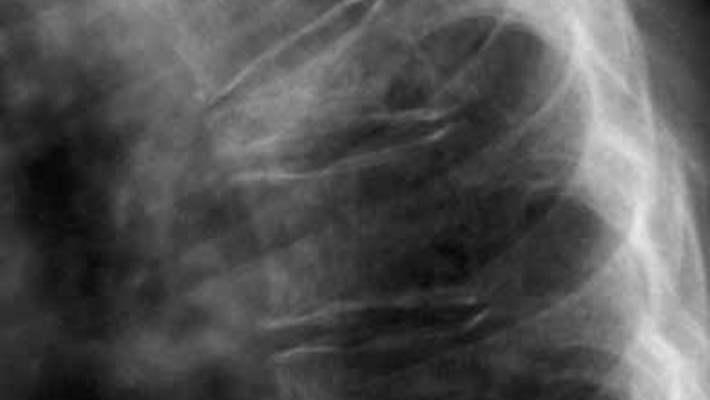 Ülkemizde Öne Çıkan Osteoporoz Risk Faktörleri