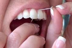 Dişte Beyaz Leke ve Tedavisi