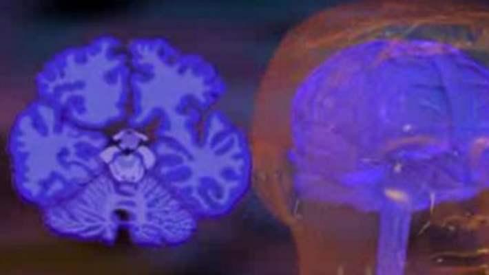Parkinson Hastalığında Demans