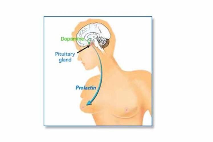 Prolaktin Hormonu Yüksekliği