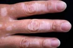 Vitiligo (ALA) Hastalığı Nedir?