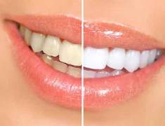 Evde Diş Beyazlatma