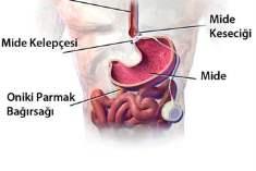 Gastroözofajeal Reflü Hastalığı