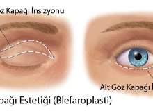 Gözkapağı Ameliyatı (Blefaroplasti)