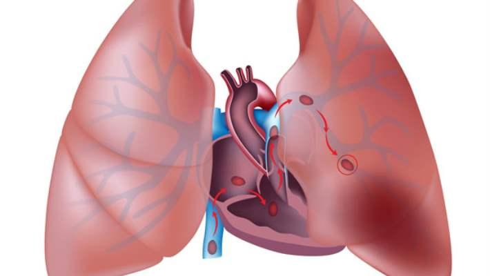 Akciğer Embolisi Teşhis Yöntemleri