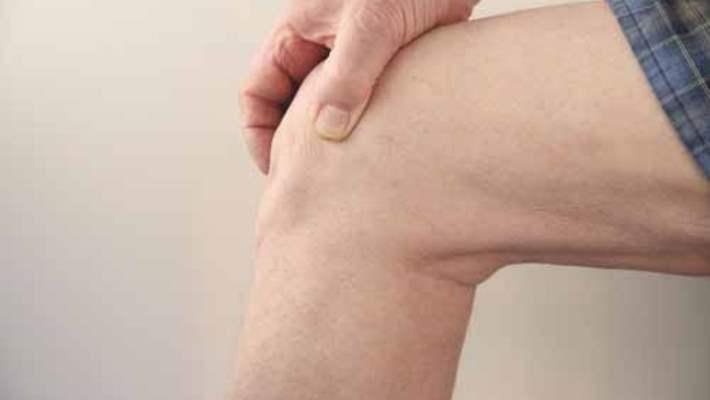 Dizde Kireçlenme (Artrit)