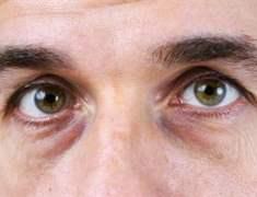 Glokom (Göz Tansiyonu) Sebepleri Ve Tedavileri