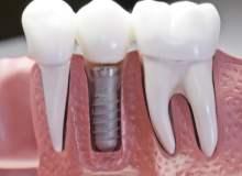 Diş Hekimliğinin Yükselen Trendi Diş İmplantları