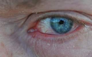 Göz Alerjisi Türleri