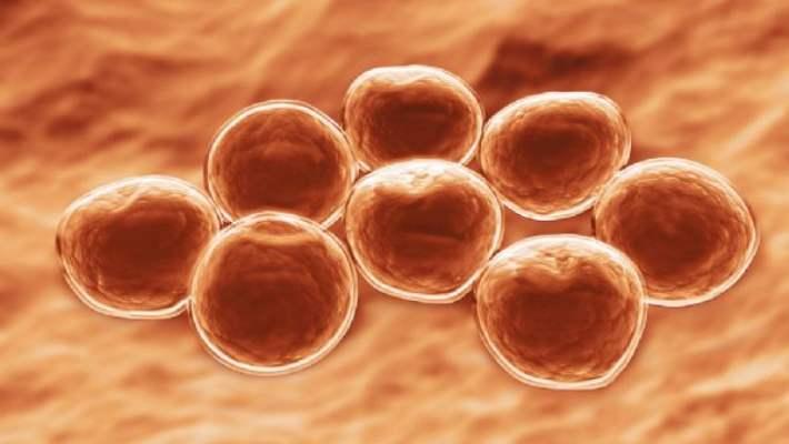 Farklı Bağışıklık Sistemi Hastalıkları Nelerdir?