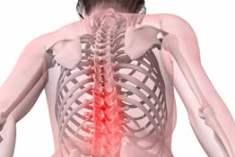 Tekrarlanan sırt ağrılarında ne yapılmalı?