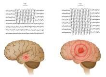 Epilepsi için Görsel Kılavuz