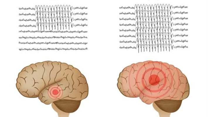 Epilepsi İçin Görsel Kılavuz