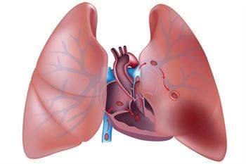 Ölçülü doz inhaler nedir?