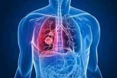 Viral Akciğer Enfeksiyonun Tedavisi Nasıl Yapılır?