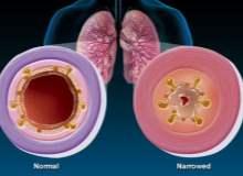 Derin Ven Trombozunun Tedavisi Nasıldır?