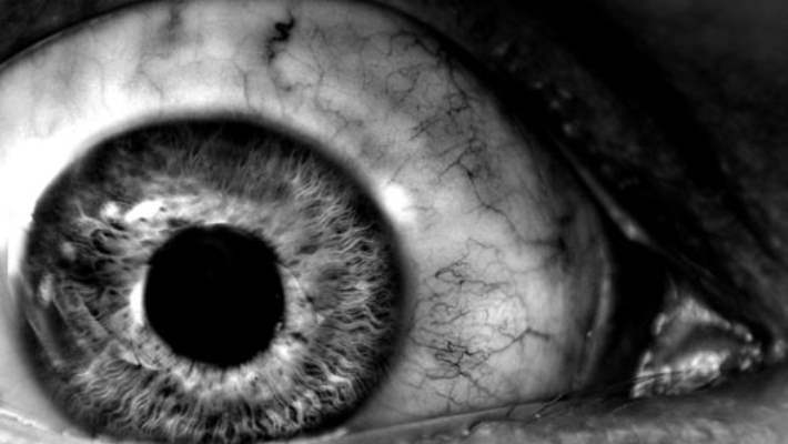 Göz Melanomunun Belirtileri Nelerdir?