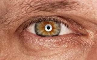 Göz Melanomunun Nedenleri Nelerdir?