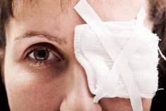 Göz melanomu nerede oluşur?