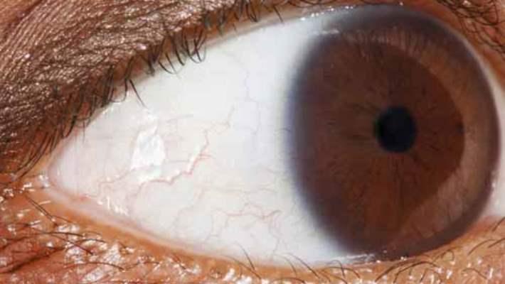Göz Melanomunun Risk Faktörleri Nelerdir?