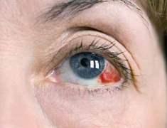 Göz melanomunun neden olduğu sağlık sorunları nelerdir?