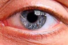 Göz melanomun teşhisi nasıldır?
