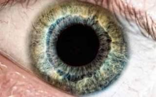 Göz melanomun tedavi yöntemleri nelerdir?