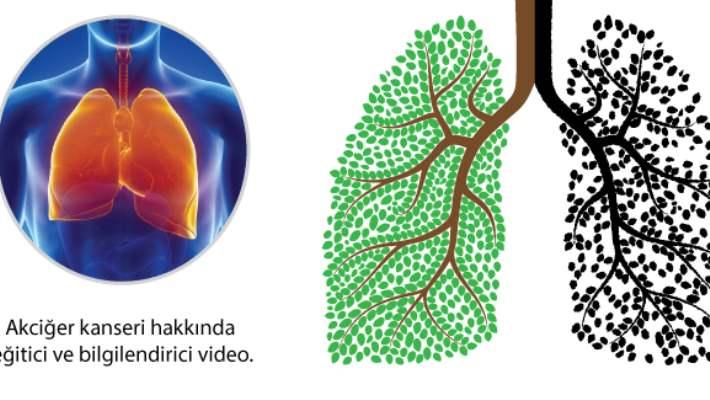 İnflamatuar Göğüs Kanseri Nasıl Teşhis Edilir?