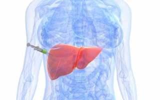 Karaciğer Kanserinin Türleri Nelerdir?