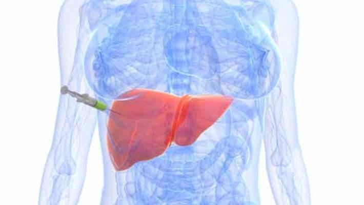 Karaciğer Kanseri Nasıl Teşhis Edilir?