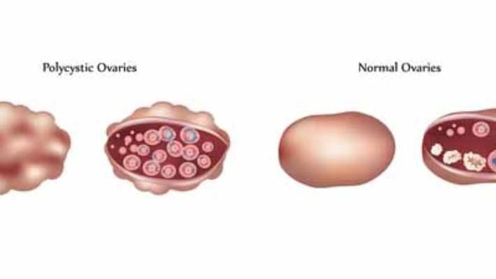 Yumurtalık Kanseri
