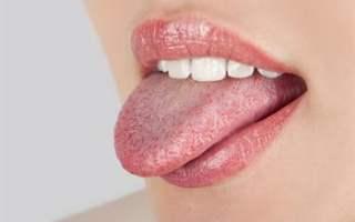 Dilde (Uçuk) Herpes
